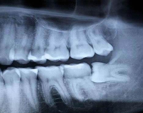 Зуб мудрости уперся в другой зуб