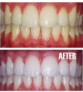 Professional Teeth Whitening Lansdowne Va Laser Whitening Ashburn Va